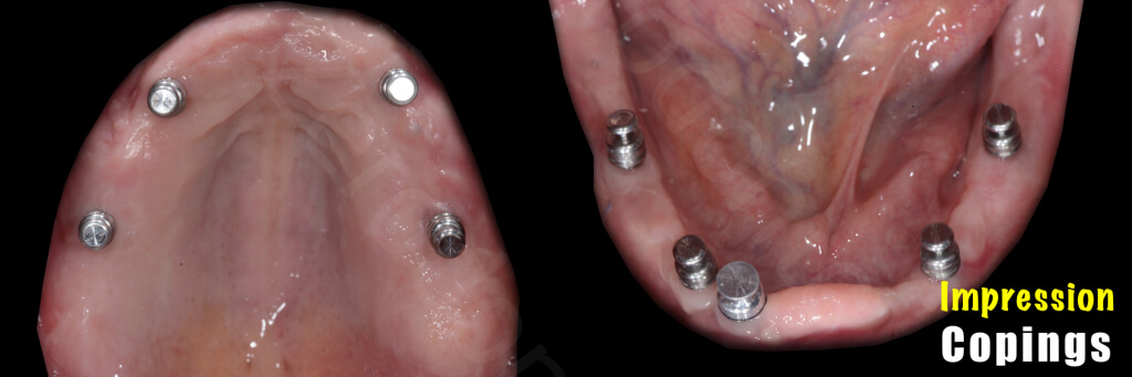Implant retained Overdentures.018