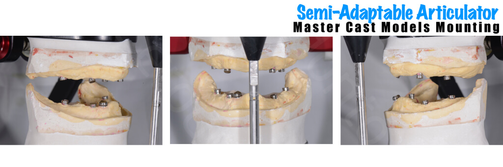 Implant retained Overdentures.025