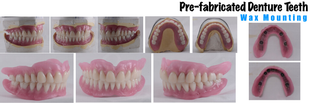 Implant retained Overdentures.029