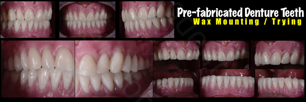Implant retained Overdentures.030