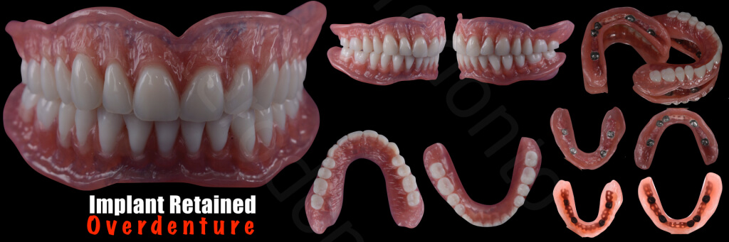Implant retained Overdentures.033