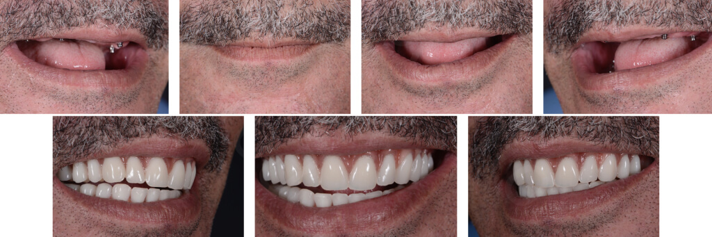 Implant retained Overdentures.037