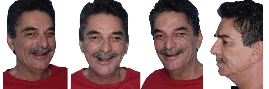 Implant retained Overdentures.038