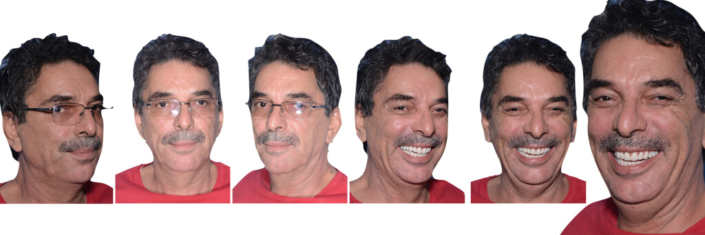 Implant retained Overdentures.039