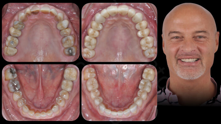 Case 47 | Prosthodontic Award 2015 | Italy