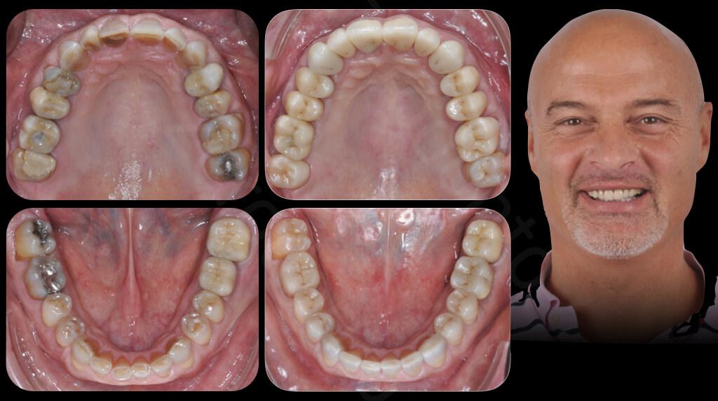 Case 47 | Prosthodontic Award 2015 | Italy
