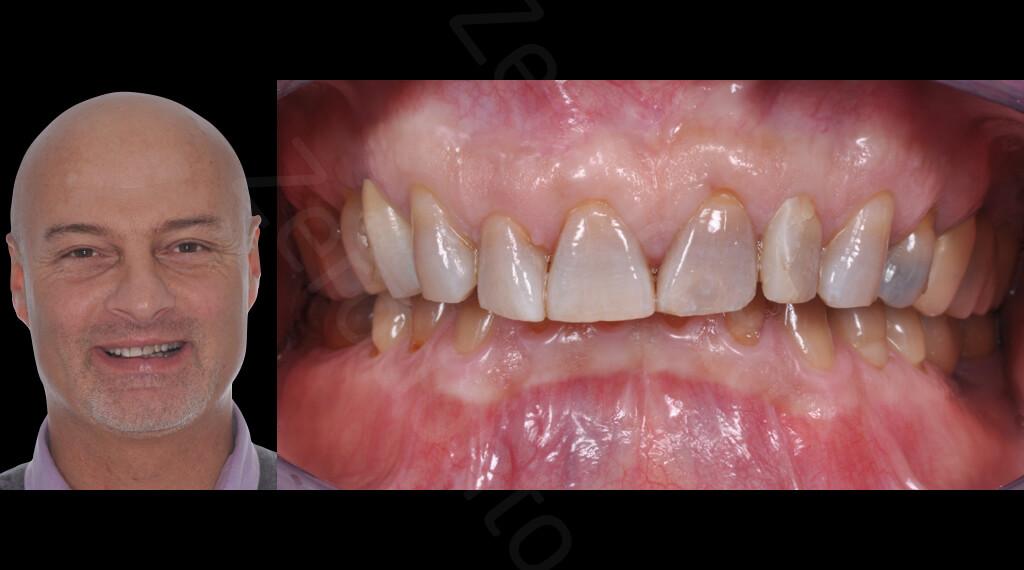 M.Veneziani Full Mouth Adh R 01