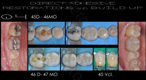 M.Veneziani Full Mouth Adh R 04