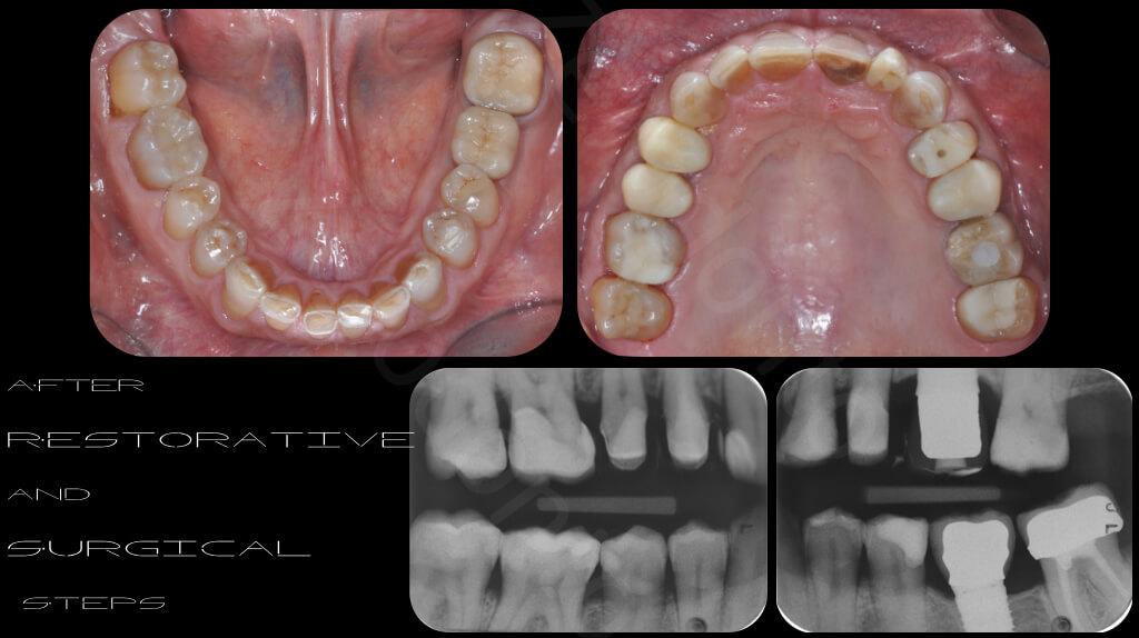 M.Veneziani Full Mouth Adh R 08