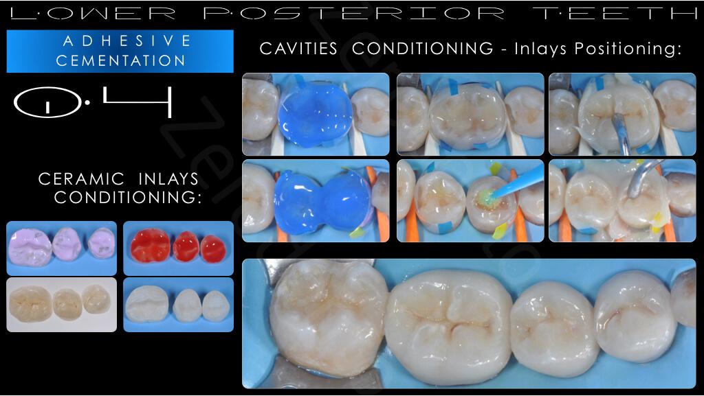 M.Veneziani Full Mouth Adh R 20