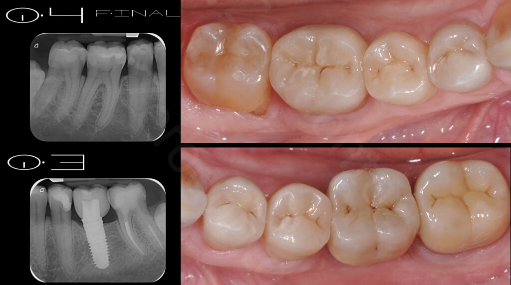 M.Veneziani Full Mouth Adh R 22