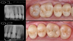 M.Veneziani Full Mouth Adh R 26