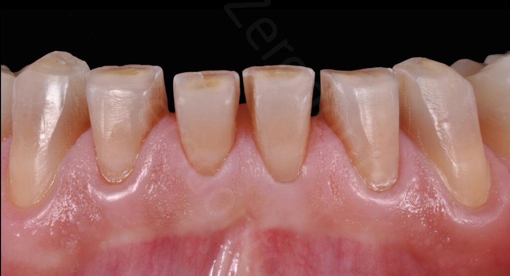 M.Veneziani Full Mouth Adh R 28