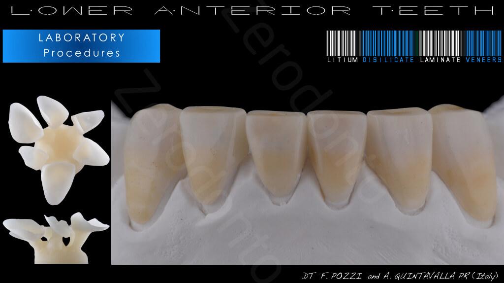 M.Veneziani Full Mouth Adh R 29