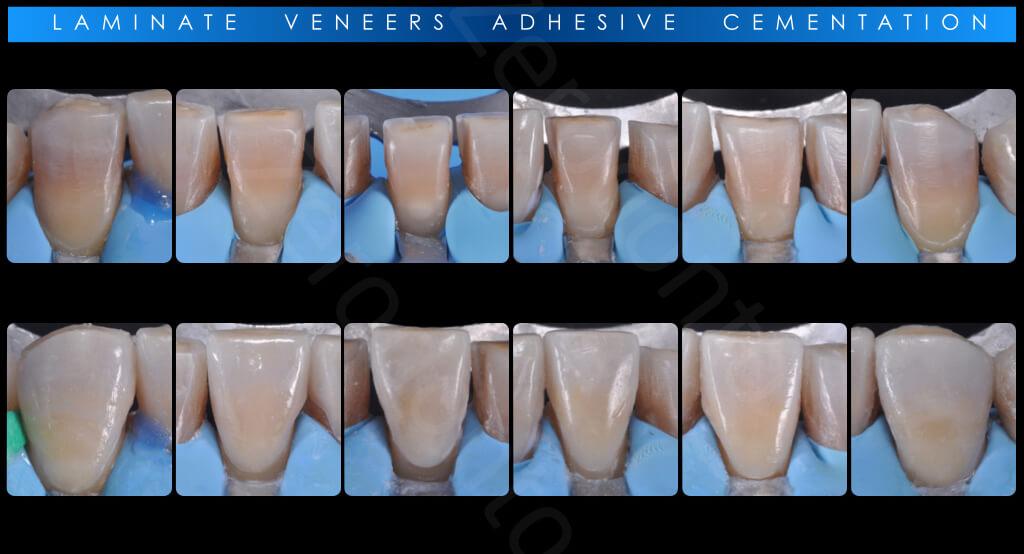 M.Veneziani Full Mouth Adh R 30