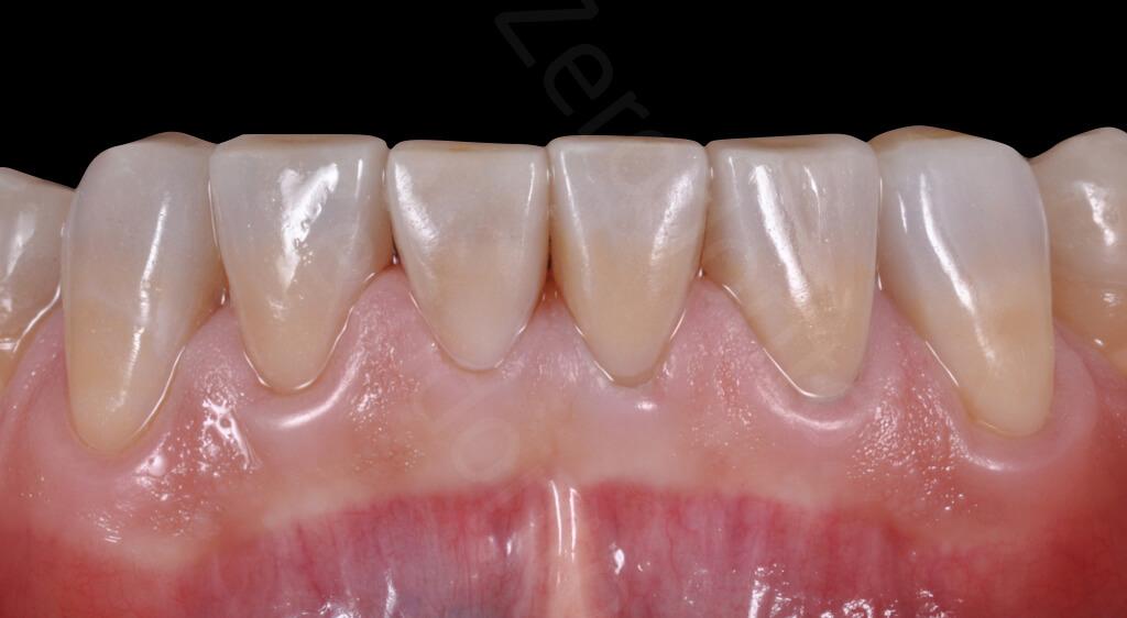 M.Veneziani Full Mouth Adh R 31