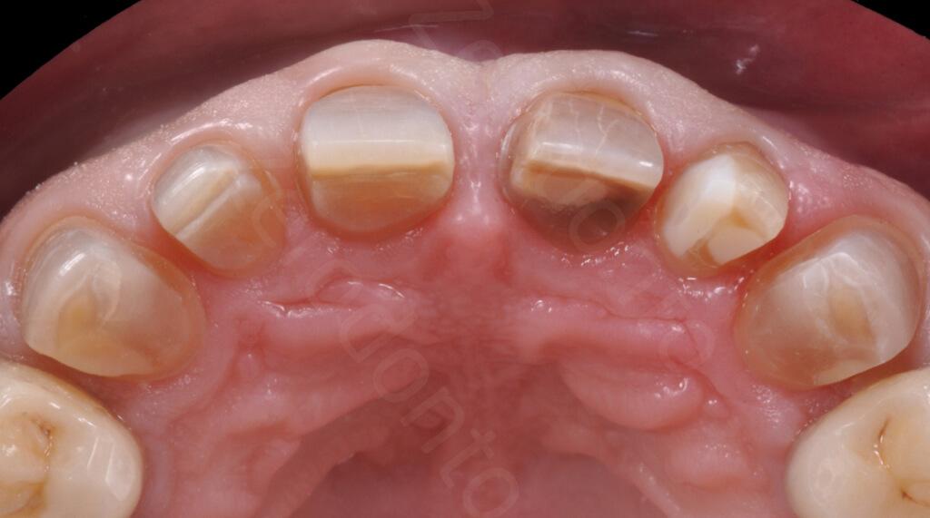 M.Veneziani Full Mouth Adh R 34