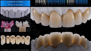M.Veneziani Full Mouth Adh R 35
