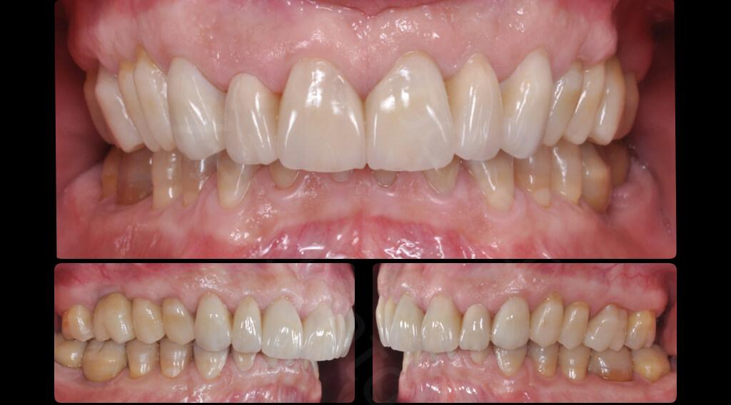 M.Veneziani Full Mouth Adh R 38