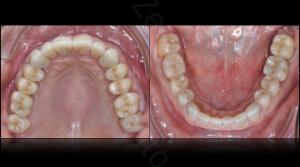 M.Veneziani Full Mouth Adh R 39