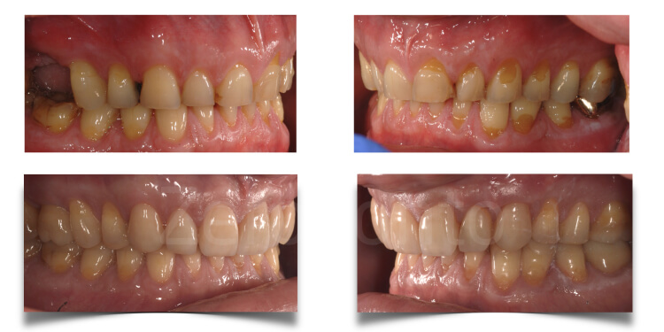 Case 14 | Prosthodontic Award 2015 | Italy