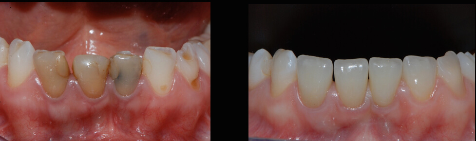 Case 65 | Prosthodontic Award 2015 | Italy