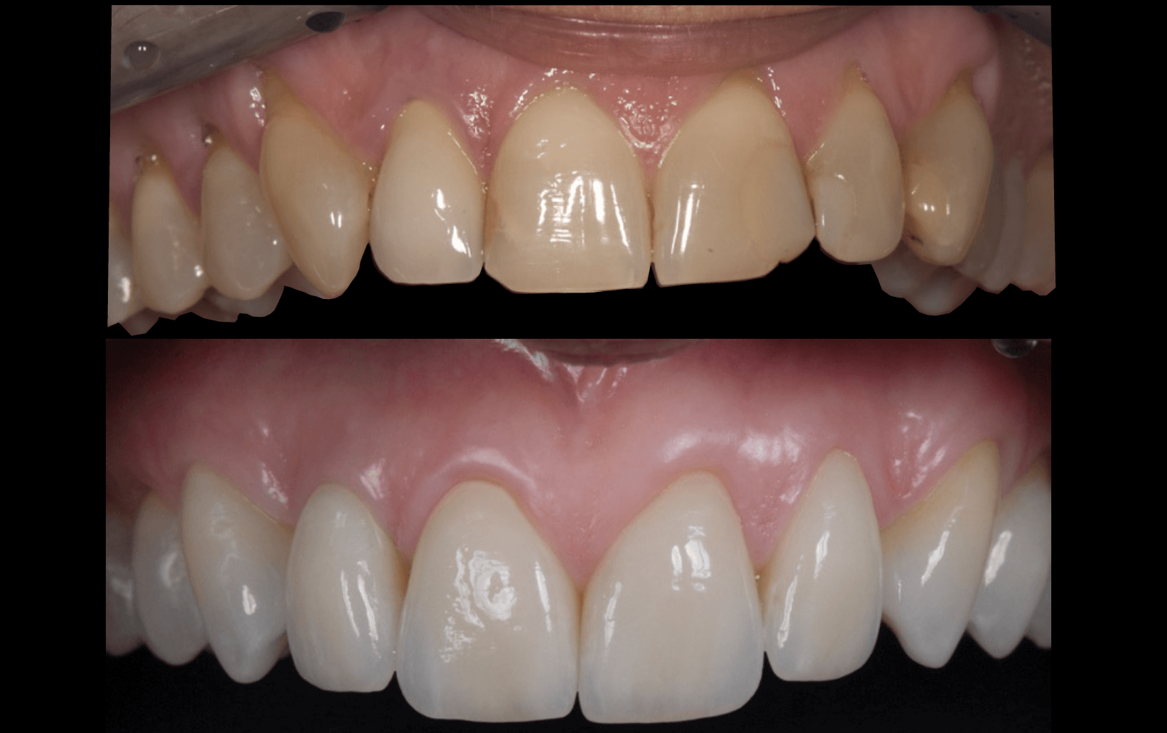 Case 30 | Prosthodontic Award 2015 | Italy