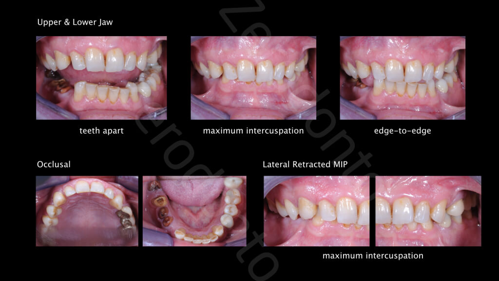 The Excellence Prosthodontic Award 2015.003