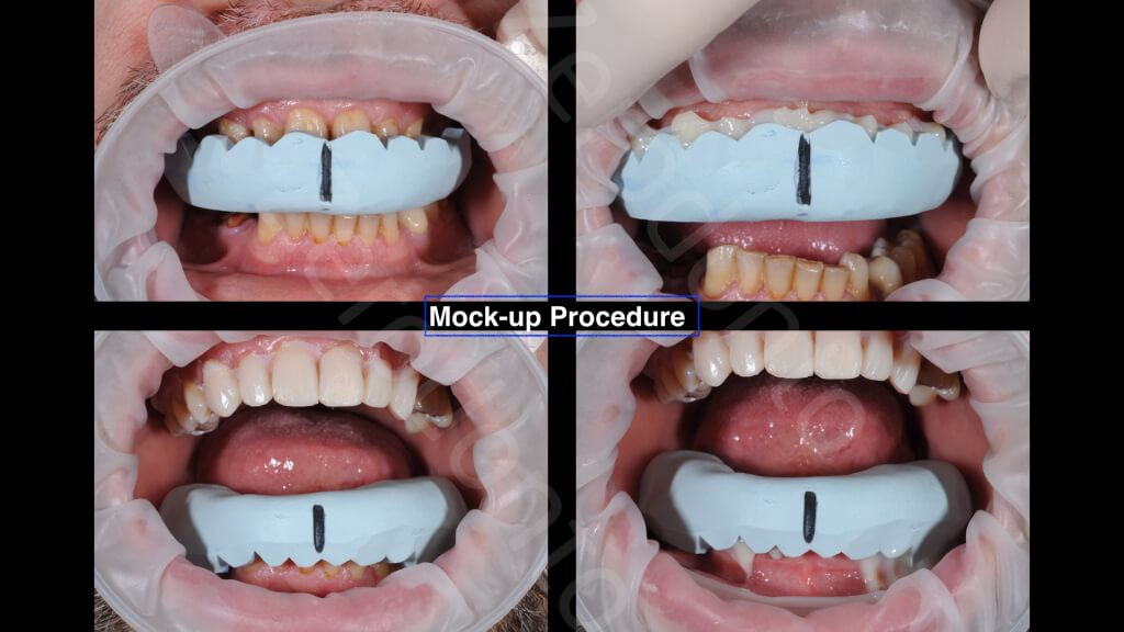 The Excellence Prosthodontic Award 2015.007