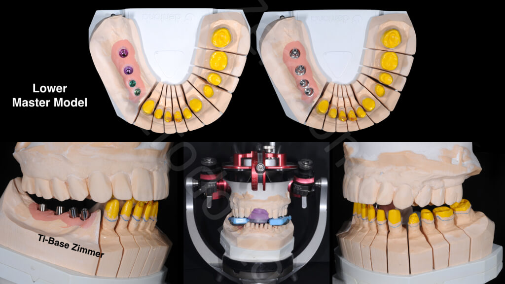 The Excellence Prosthodontic Award 2015.016