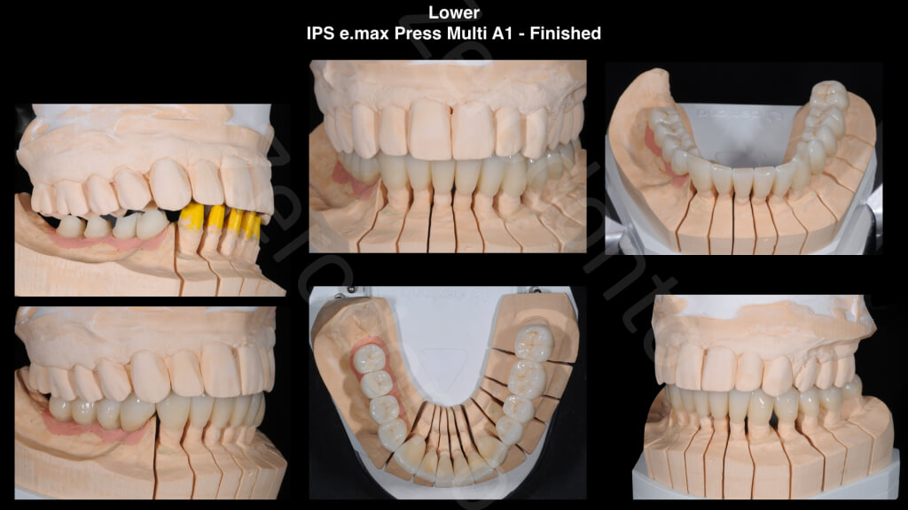 The Excellence Prosthodontic Award 2015.018