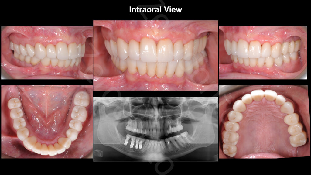 The Excellence Prosthodontic Award 2015.019