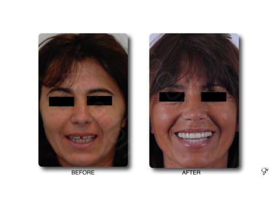 Case 66   Prosthodontic Award 2015   Italy