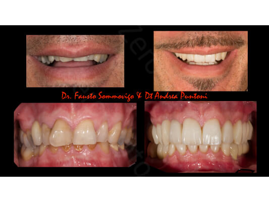 Case 52 | Prosthodontic Award 2015 | Italy