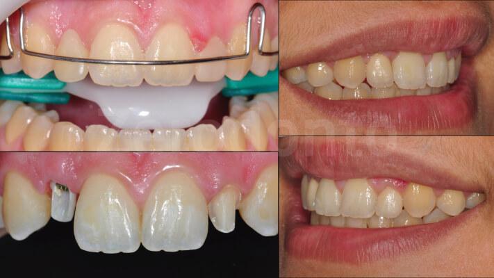 Case 20 | Prosthodontic Award 2015 | Brasil