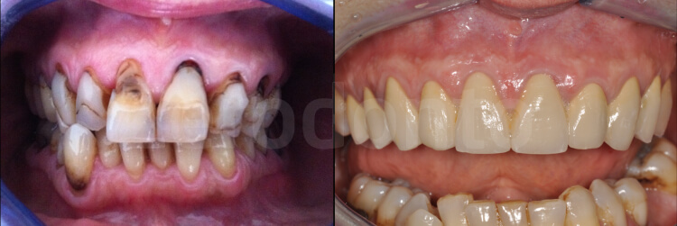 Case 19 | Prosthodontic Award 2015 | Italy
