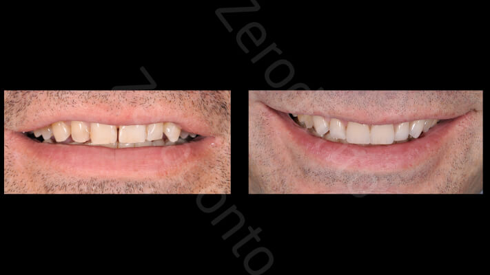Case 35 | Prosthodontic Award 2015 | Italy