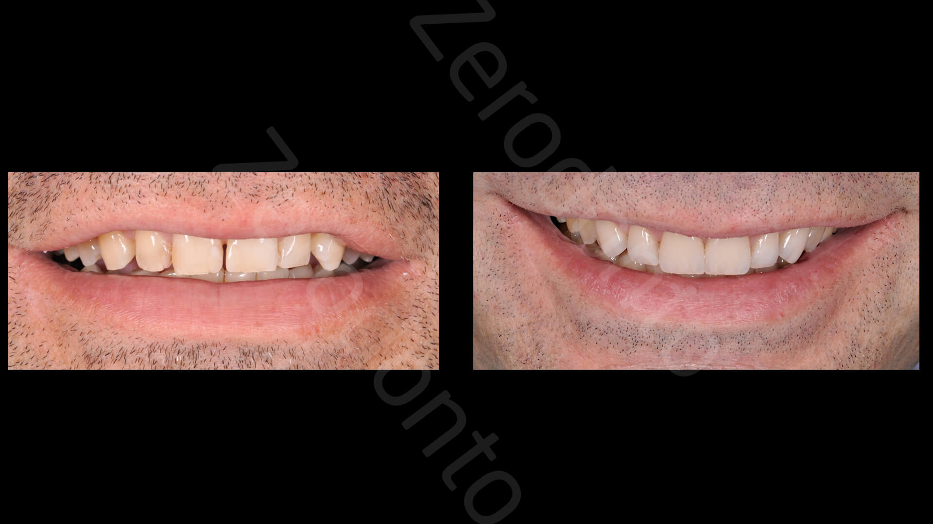 Case 35 | Prosthodontic Award 2015 | Italy