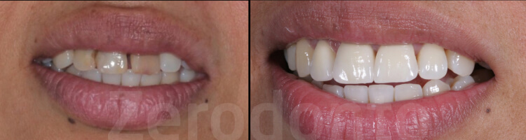 Case 12 | Prosthodontic Award 2015 | Italy