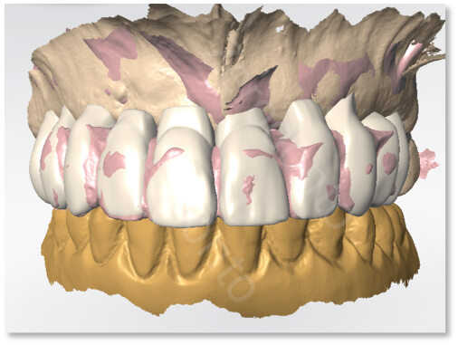 final matching between teeth and transition denture