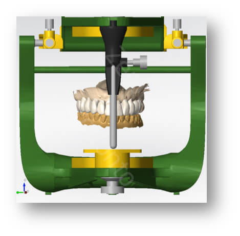 functional check with articulator