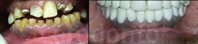 Case 13 | Prosthodontic Award 2015 | India