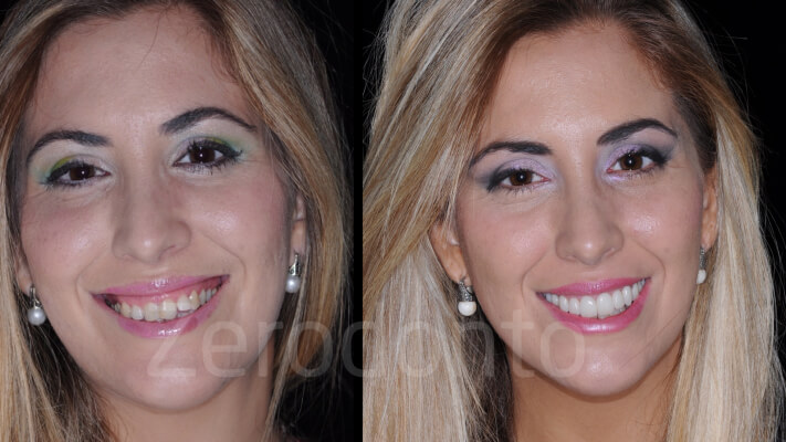 Case 9   Prosthodontic Award 2015   Portugal