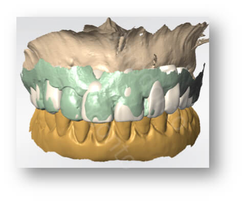 matching teeth shape - old denture