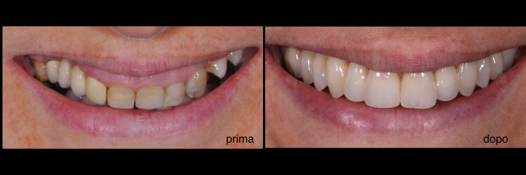 Case 24 | Prosthodontic Award 2015 | Italy