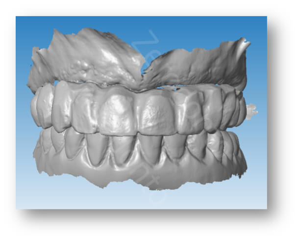 scan of the modified transition denture