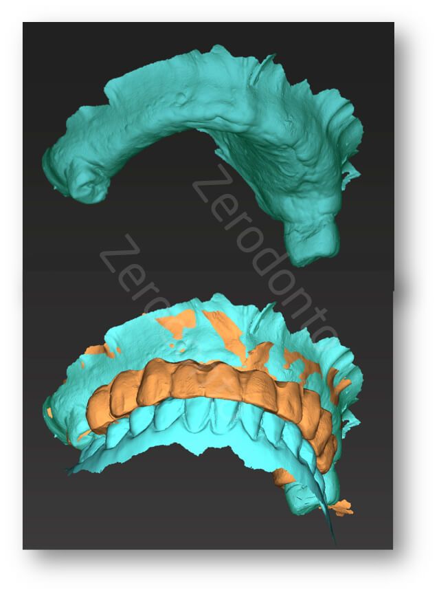 stl matching with transitional denture