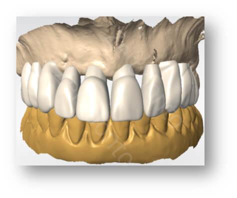 teeth design