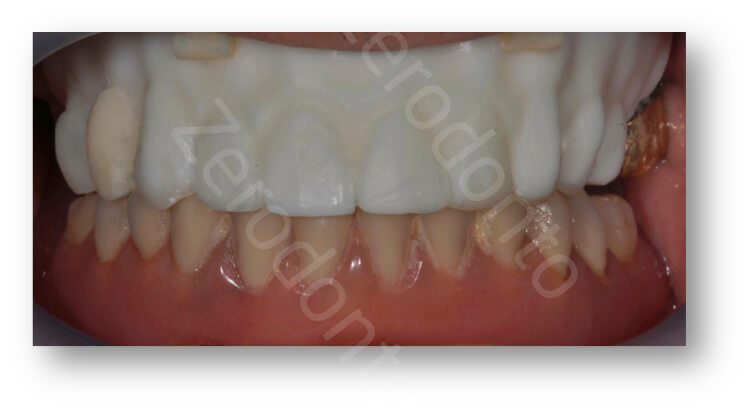 transition denture in the mouth
