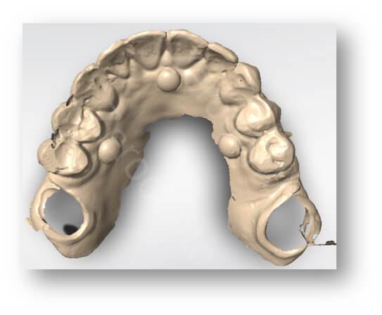 transition denture